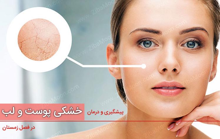 درمان خشکی پوست و خشکی لب در فصل زمستان