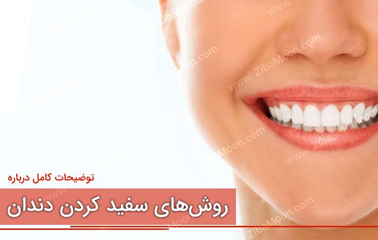 بهترین روش های سفید کردن دندان