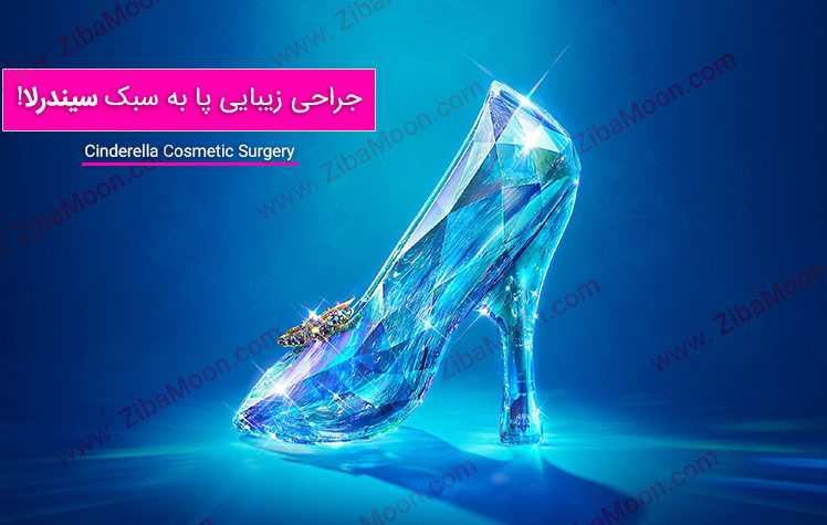 جراحی پای سیندرلا مد جدید زیبایی - عکس