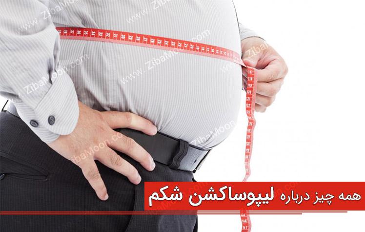 لیپوساکشن شکم چیست؟