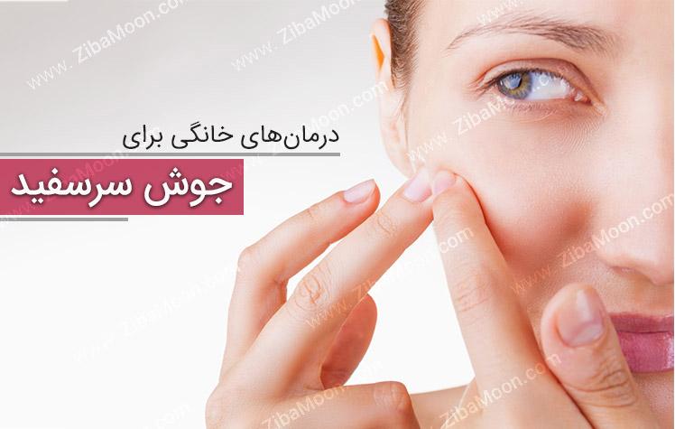 جوش سرسفید صورت و درمان های خانگی