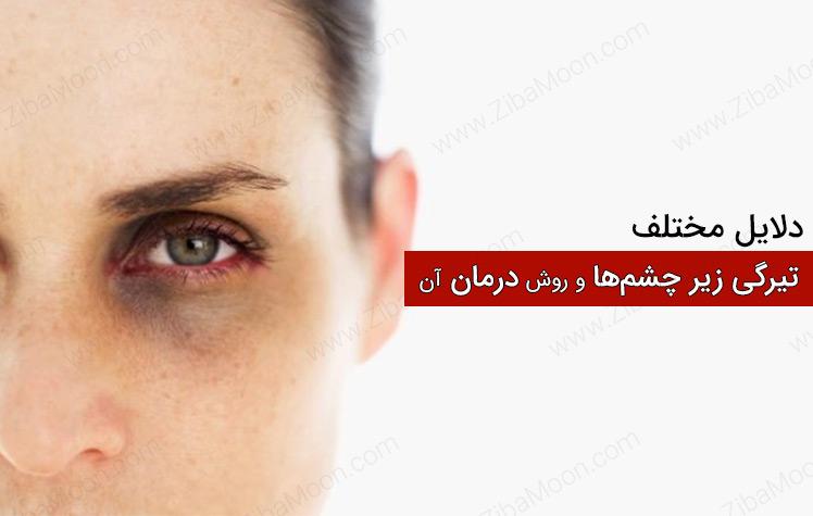 دلایل تیرگی زیر چشم ها و راههای درمان آن