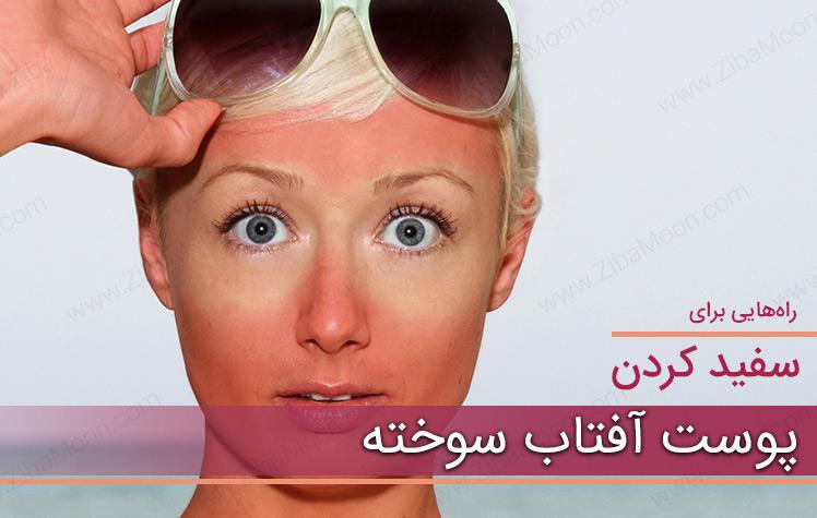 سفید کردن پوست آفتاب سوخته