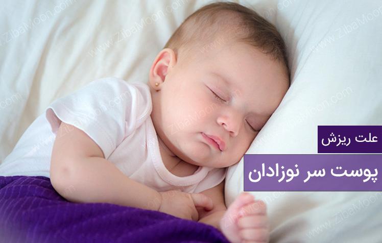 علت ریزش پوست سر نوزاد و راه حل آن چیست؟