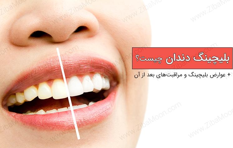 بلیچینگ دندان چیست و چه عوارضی دارد؟