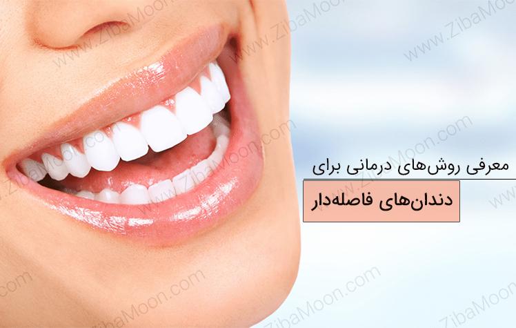 بهترین روش های درمانی برای دندان های فاصله دار
