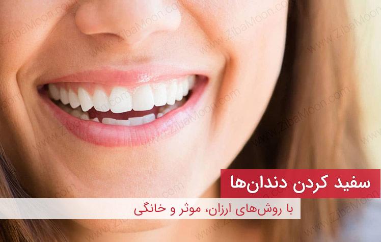 سفید کردن دندان ها، روشهای موثر و ارزان خانگی برای عید نوروز