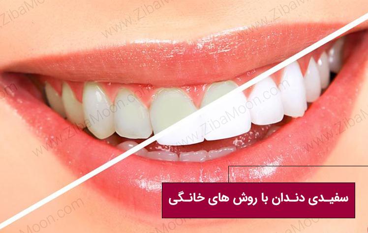 سفیدی دندان با روش های خانگی