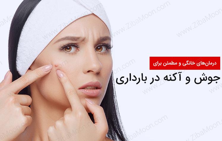 درمان جوش صورت در بارداری با روش های خانگی و مطمئن