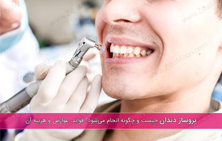 بروساژ دندان چیست و چگونه انجام می شود؟