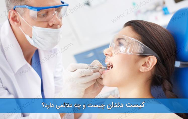کیست دندان چیست و چه علائمی دارد؟