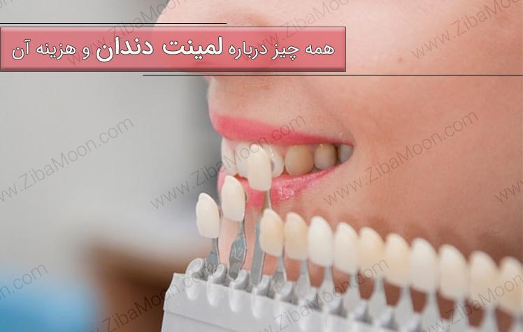 همه چیز درباره لمینت دندان و هزینه آن