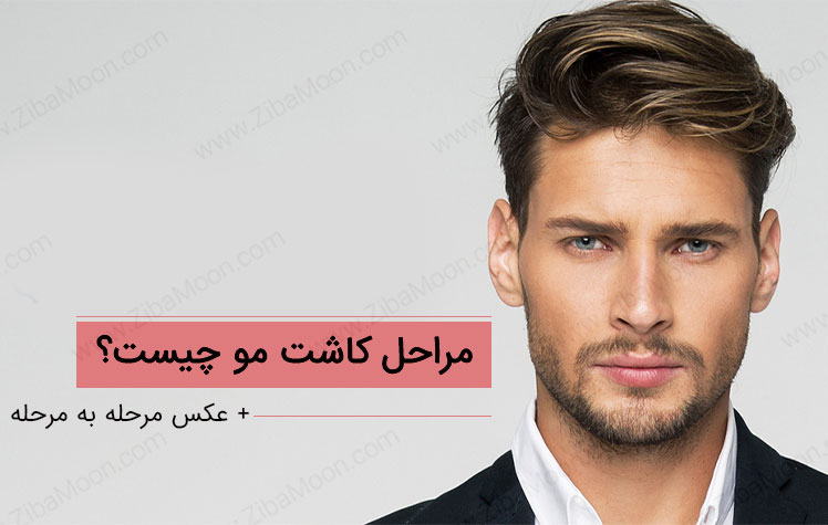مراحل کاشت مو چیست؟ + تصویر