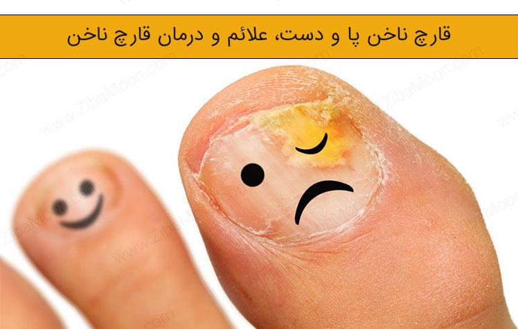 قارچ ناخن پا و دست، علائم و درمان قارچ ناخن
