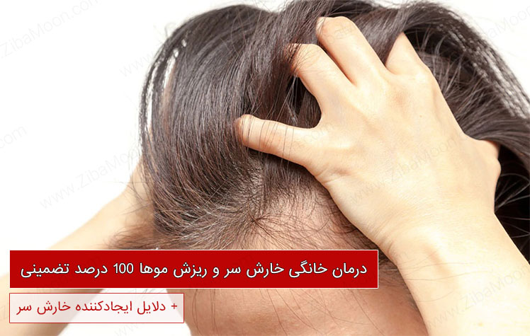 درمان خانگی خارش سر و ریزش موها 100 درصد تضمینی