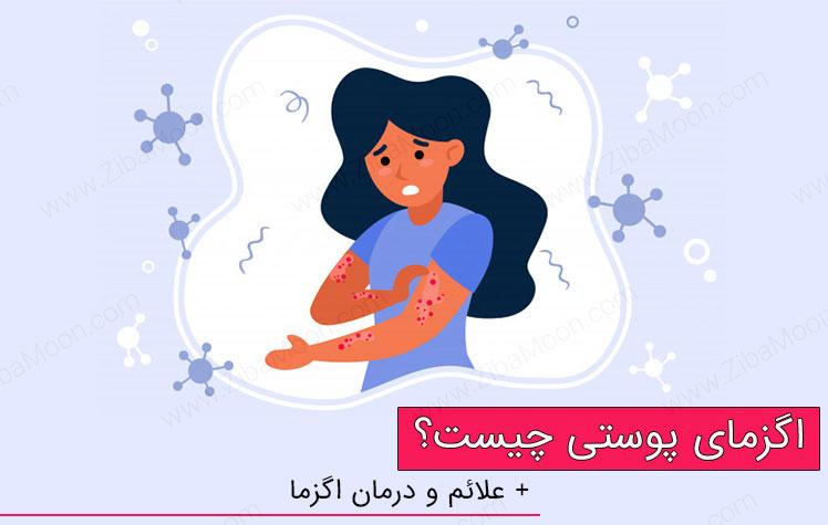 بیماری اگزمای پوستی چیست؟ + علت و درمان اگزما پوست