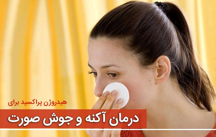جوش و آکنه - درمان جوش صورت با هیدروژن پراکسید